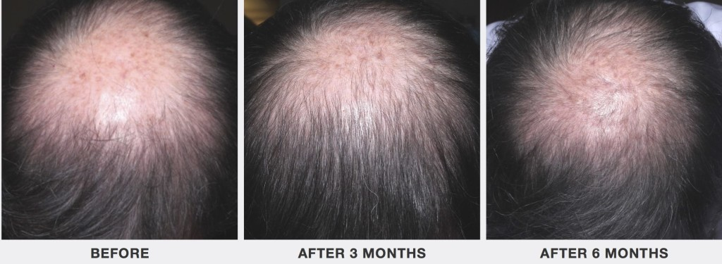 Platelet Rich Plasma To Treat Hair Loss