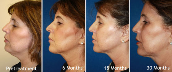 non-invasive skin tightening treatments