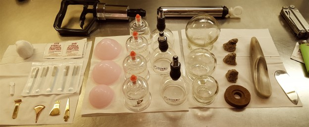 what you need to know about cupping